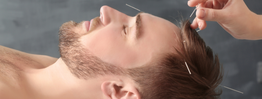 The miracle of Acupunctures
